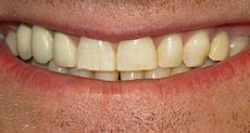 Mild dental fluorosis image
