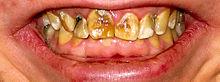 Severe dental fluorosis image